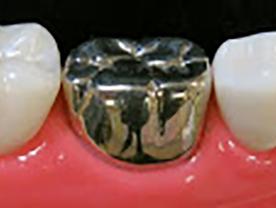 銀歯(保険)