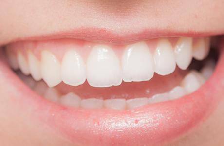 審美歯科の当院の考え方