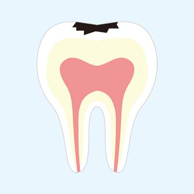 小さめの虫歯