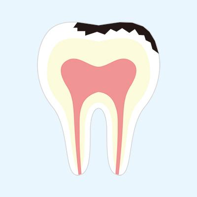 やや大きめの虫歯(隣接面に及ぶう蝕)
