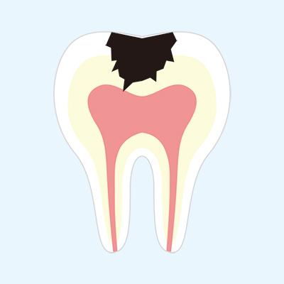 神経に達しているかなり大きい虫歯