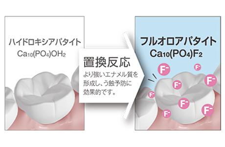 フッ素イオン導入法